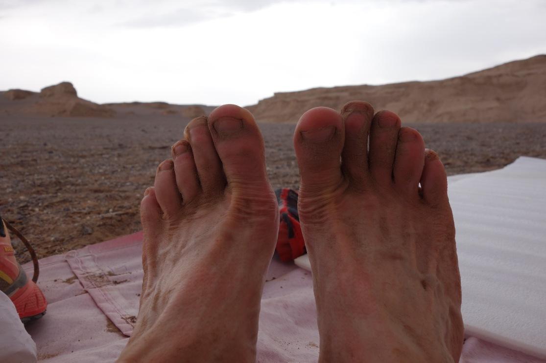 En liten blemme på grunn av mye sand i skoen etter 250 kilometer i Iranian Silk Road Ultramarathon.